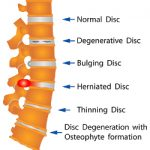 Diagram showing different types of discs in the vertebrae